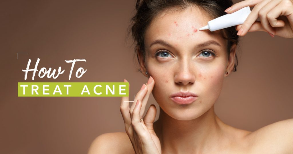 How to Get Rid of Acne Pt. 2 – Acne Routine